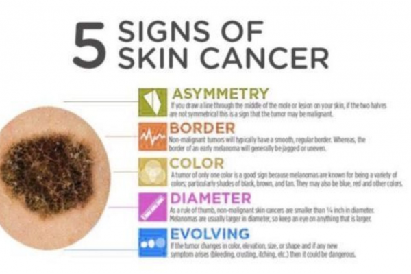 Skin Cancer Awareness Month post image on the-journal.es
